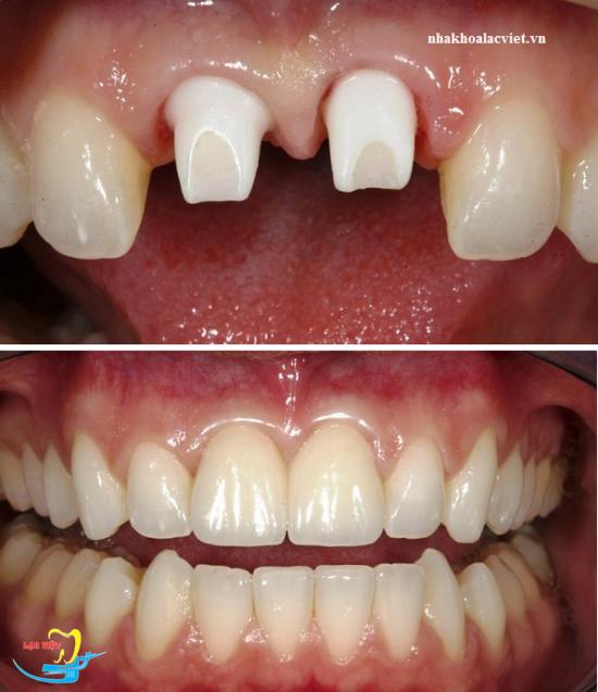 Trồng răng giả bằng cấy ghép implant tại nha khoa Lạc Việt