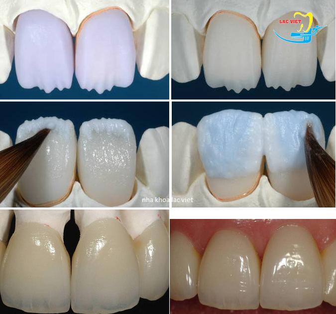Phân tích Bọc răng sứ cercon giá rẻ
