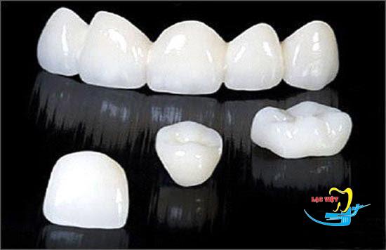 Bọc răng sứ cercon giá rẻ