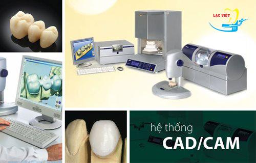 công nghệ Bọc răng sứ cercon giá rẻ