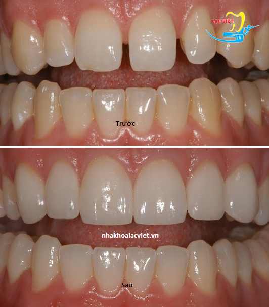 Bọc răng sứ cercon giá rẻ ở Lạc Việt