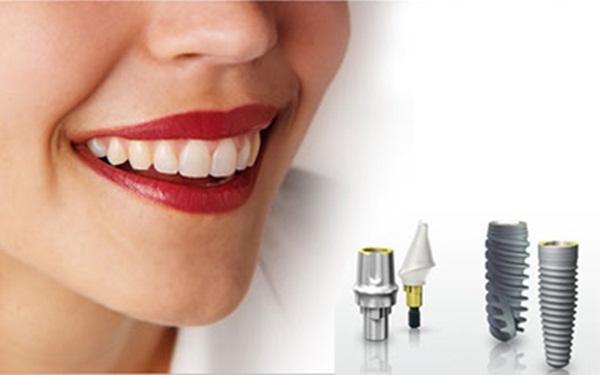Trồng răng cho người già bằng cách cắm ghép implant