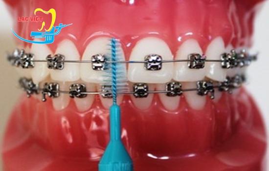 Niềng răng móm có đau không mọi người phụ thuộc vào chính bệnh nhân