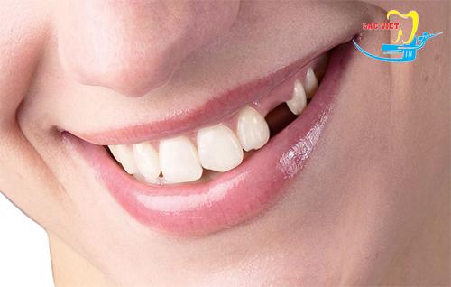 Hiện nay răng sứ cercon giá bao nhiêu