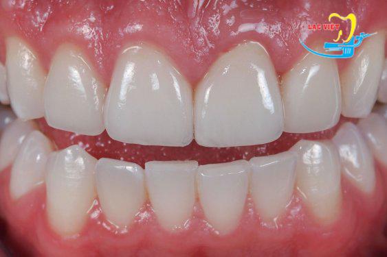 Trường hợp bệnh nhân thẩm mỹ răng tại Lạc Việt bằng loại sứ Cercon thông thường