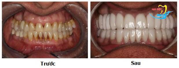 Bọc răng sứ veneer ở đâu tốt đòi hỏi Cơ sở đó phải có các loại răng sứ hiện đại nhất