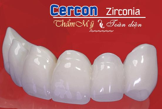 Bọc răng sứ cercon tại Hà Nội