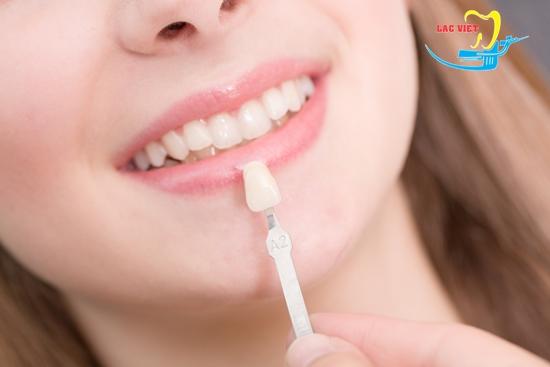 Bọc răng sứ chữa móm nhẹ