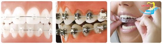 Các loại niềng răng và niềng răng móm có đau không mọi người