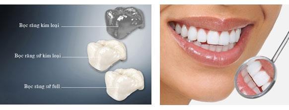 Phân tích Răng sứ Cercon và những điều cần biết