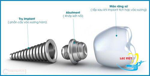 Cấu tạo của một implant hoàn chỉnh nhất