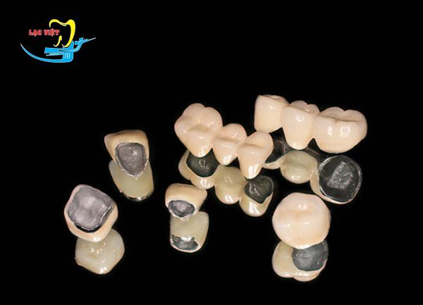một số kinh nghiệm bọc răng sứ titan