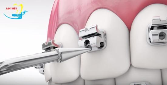Niềng răng móm bao lâu và phương pháp nhanh nhất
