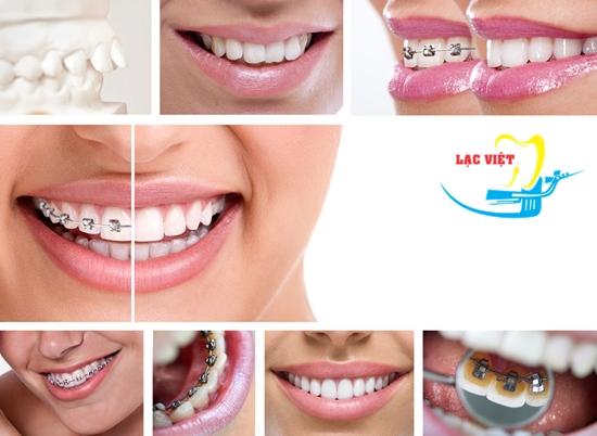 Giá tiền chỉnh răng hô trọn gói