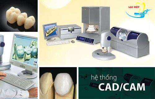 giá trồng răng sứ vĩnh viễn là bao nhiêu khi sử dụng công nghệ Cad/Cam