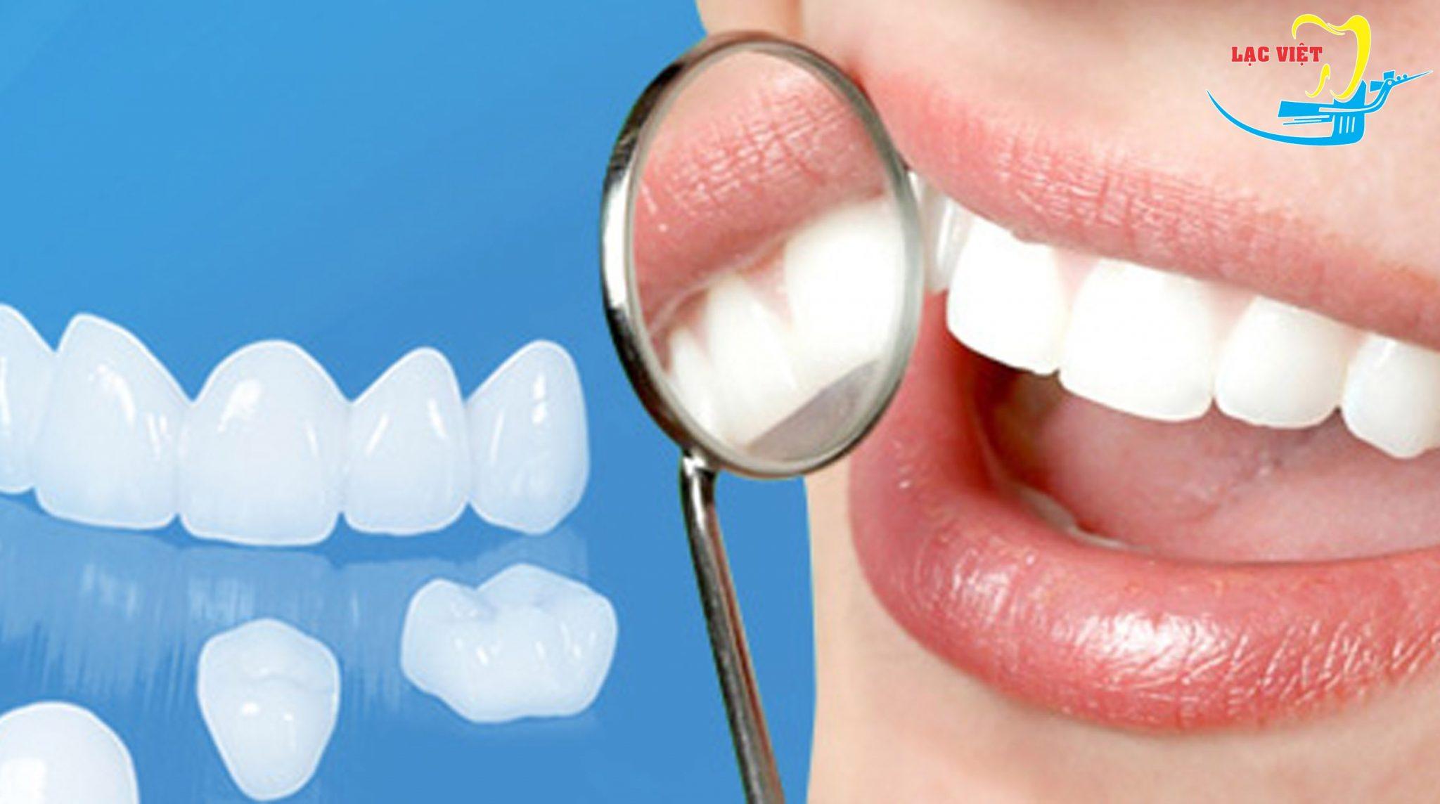 giá trồng răng sứ vĩnh viễn khi sử dụng răng toàn sứ là bao nhiêu?