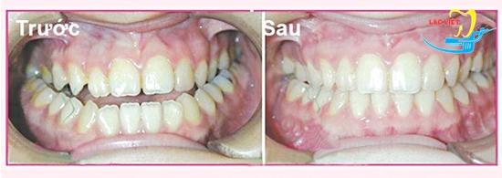 Kết quả chữa răng móm nhẹ