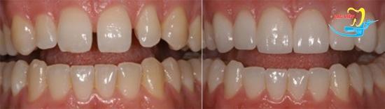 Nha sỹ giải đáp niềng răng mặt trong có tốt không
