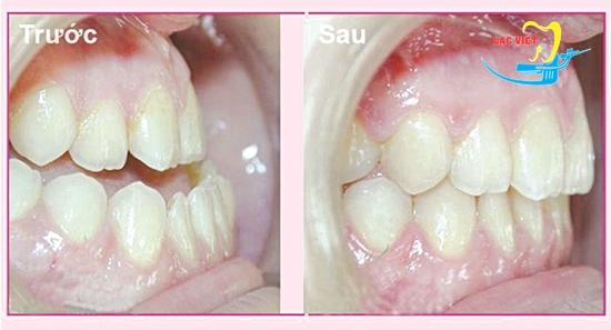 niềng răng móm mất bao lâu với công nghệ tiên tiến