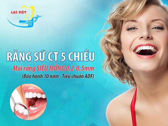 Làm răng thẩm mỹ ct 5 chiều tại Nha khoa Lạc Việt
