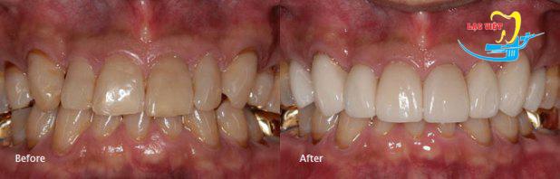 Bọc răng sứ thẩm mỹ và mặt dán sứ veneer ở nha khoa Lạc Việt
