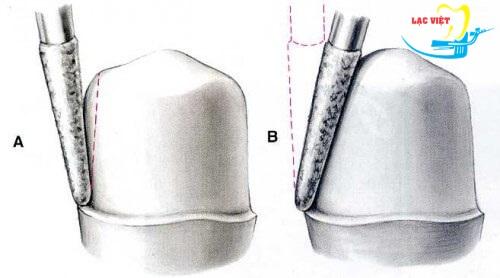 Mài cùi răng trong quy trình trồng răng sứ titan