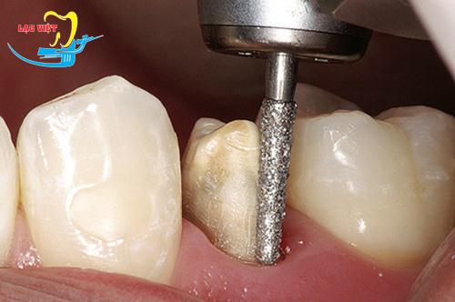 Tìm hiểu về quy trình làm răng sứ Cercon