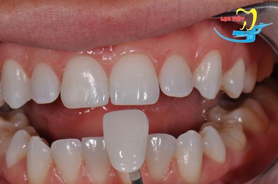 Mài răng bọc sứ chỉnh hàm móm