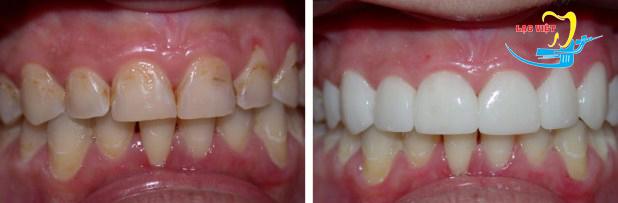 áp dụng phương pháp Bọc răng sứ thẩm mỹ và mặt dán sứ Veneer