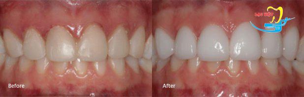 Bọc răng sứ thẩm mỹ và mặt dán sứ Veneer nên chọn phương pháp nào