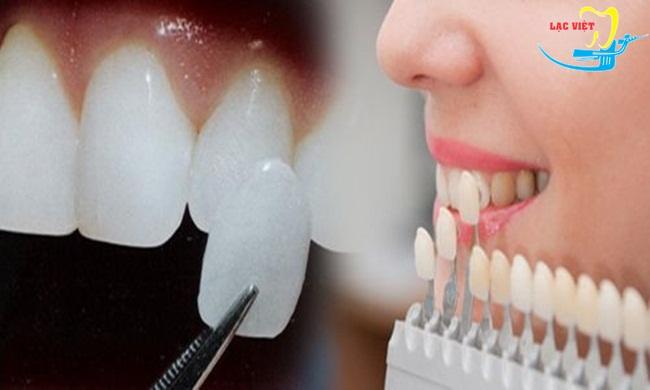 nên trồng răng giả loại nào tốt?