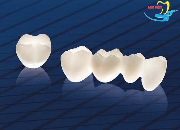 răng e.max và răng sứ cercon là đáp án cho nên trồng răng giả loại nào