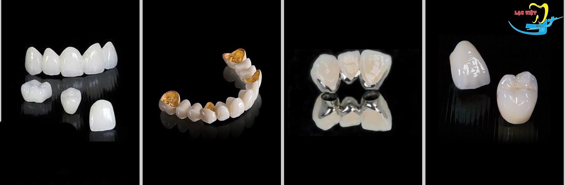 nên trồng răng giả loại nào cần căn cứ vào vị trí răng cần phục hình