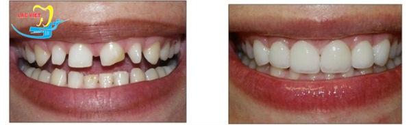 trồng răng sứ titan có tốt không - hình ảnh phục hình răng sứ titan