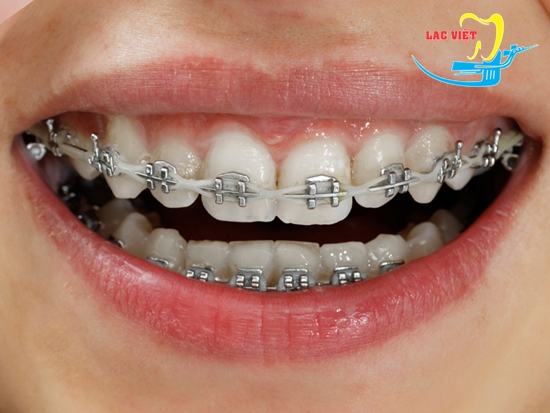 Răng vẩu phải làm sao khắc phục nhanh chóng