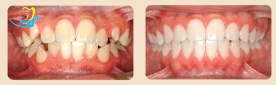 Chuyên gia nha khoa giải đáp răng vẩu phải làm sao