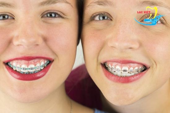 niềng răng cho trẻ em lúc nào là hợp lý nhất
