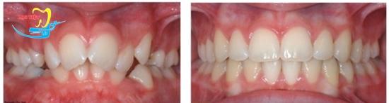Giá niềng răng cho trẻ em bao nhiêu phụ thuộc nhiều yếu tố