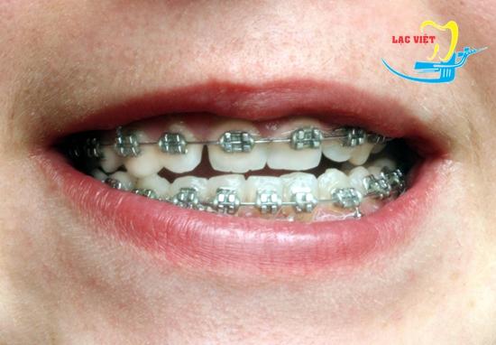 Niềng răng chỉnh sửa hàm móm