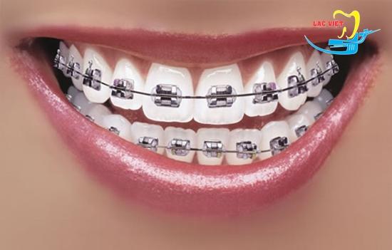 Niềng răng chữa răng móm nhẹ