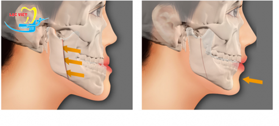 Răng móm có niềng được không với trường hợp do xương hàm