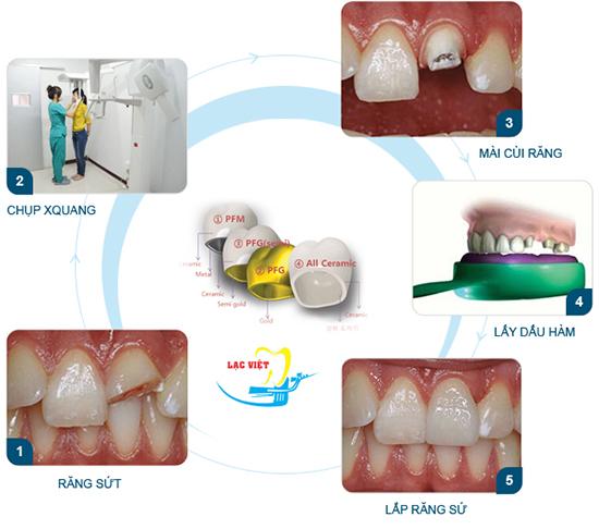 Quy trình bọc răng sứ thẩm mỹ tại Nha Khoa Lạc Việt
