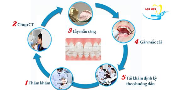 Quy trình niềng răng hô thẩm mỹ tại Nha khoa Lạc Việt
