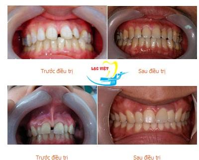 Kết quả sau quy trình trồng răng sứ titan