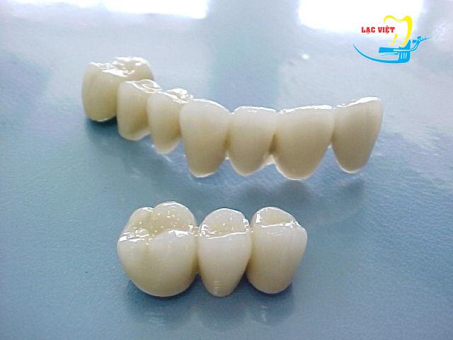Tìm hiểu về Răng sứ Cercon và những điều cần biết