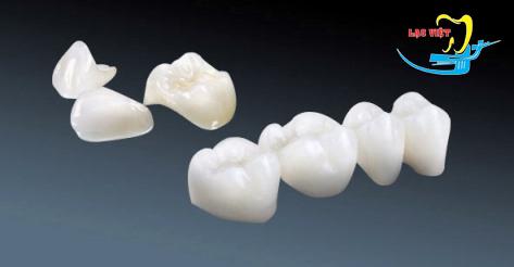 răng sứ cercon giá bao nhiêu là hợp lý