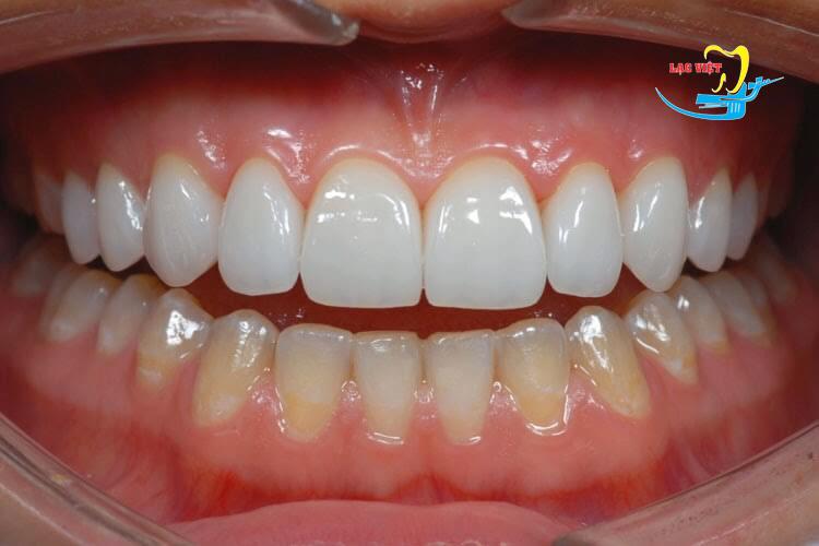 Phân tích tại sao phải bọc răng sứ Veneer