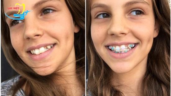 Phương pháp thẩm mỹ răng hô