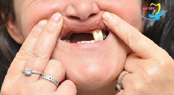 Trồng răng implant cho bệnh nhân mất răng toàn hàm