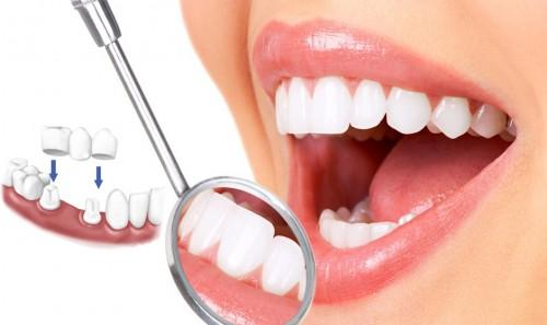 Trồng 2 răng sứ bằng giải pháp làm cầu răng sứ